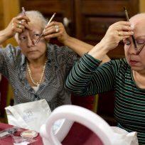 ¿Cómo detectar la alopecia?