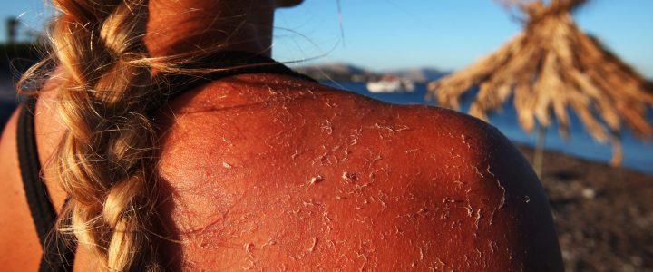Quemadura piel aplicación