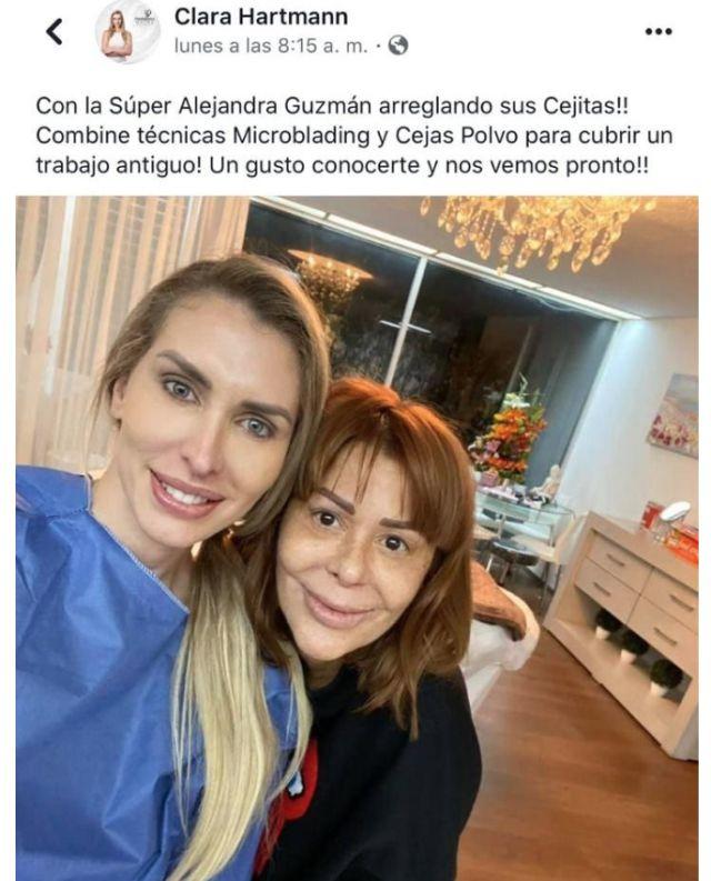 Alejandra Guzmán preocupó a sus fans por el exceso de cirugías - Imagen 1