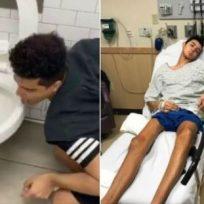 ¡Cuidado! Joven se contagió de coronavirus luego de hacer el #CoronavirusChallenge