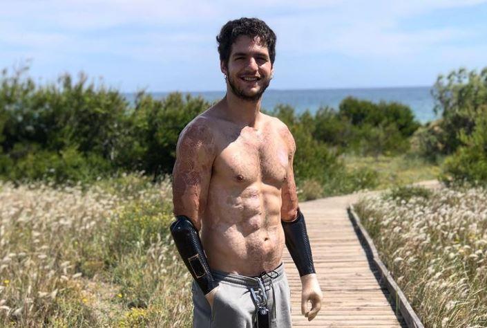 Davide Morana, el hombre que perdió sus extremidades y se volvió un ejemplo de superación